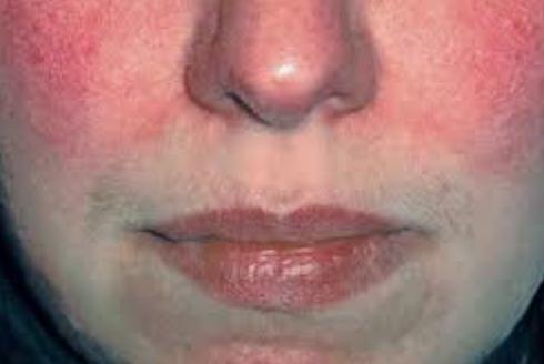 rosacea skin condition