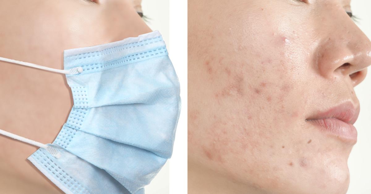 mask acne