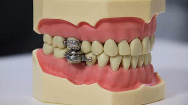 mouth lock